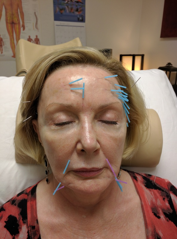 Acupuncture Facial Rejuvenation in Scottsdale  - During Treatment