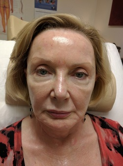 Acupuncture Facial Rejuvenation in Scottsdale - after 2 Weeks of Treatment